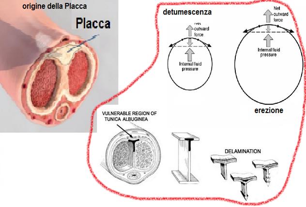 Placca fibrosa, diagnosi e interventi terapeutici - btrader.lt