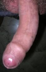 cicatrice pene